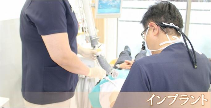 インプラント治療例