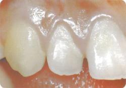 一見、健康そうな歯ぐきですが・・・。