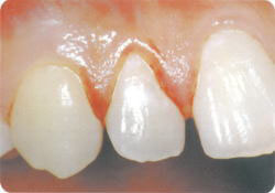 歯を磨いたら、歯ぐきから血がでてしまいました。