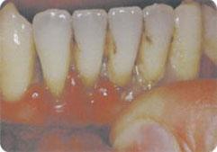 歯が、ゆれ動いていませんか?