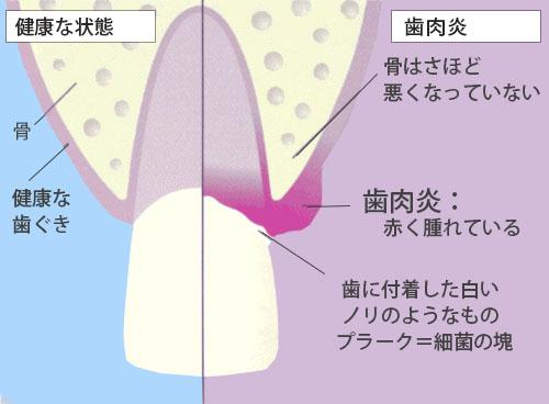 歯ぐきの病気/歯肉炎って?