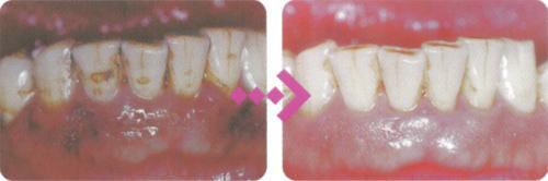 プラークがつかないくらいに磨けば、歯肉炎はどんどん良くなって、健康な歯ぐきになります。