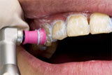 歯面クリーニング